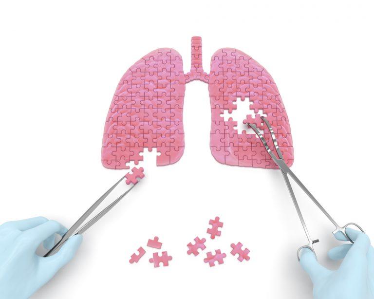 רשלנות בניתוח לכריתת ריאה