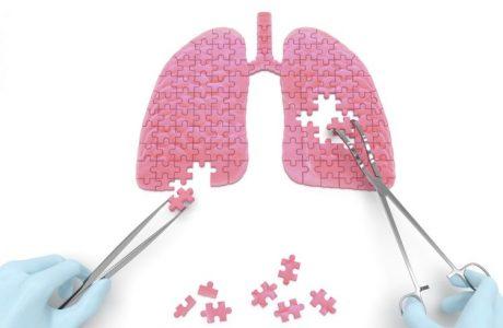 תביעה בשל רשלנות בניתוח לכריתת ריאה
